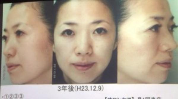 【Dr.リセラ 症例ベーシック研修】