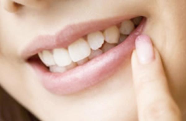 歯のホワイトニング☆キャンペーン